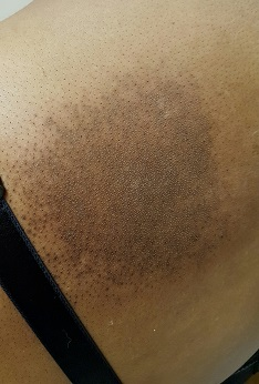 Radiation Burn on my Back - 5.16-7.1